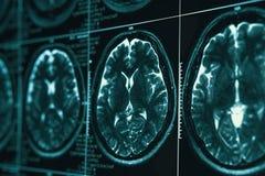 MRI或头和脑部扫描的磁反应图象 关闭视图 免版税库存照片