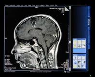 Mri扫描显示器 免版税库存照片
