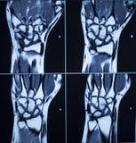 MRI扫描测试结果腕子手伤 免版税图库摄影