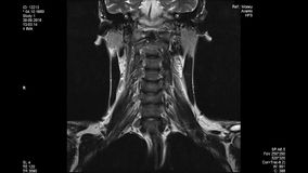 MRI扫描,腰脊柱 皇族释放例证