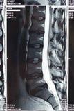 MRI扫描 免版税库存照片