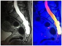 Mri硬脑膜的ectasia骶骨水平神经的拼贴画 免版税库存照片