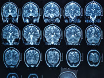 MRI脑子扫描 免版税图库摄影