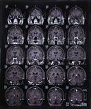 MRI脑子的扫描图象 免版税库存图片