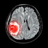 MRI脑子:显示脑瘤在大脑的右顶叶 库存图片