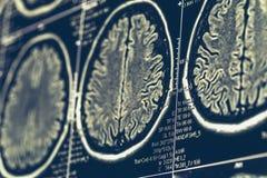 MRI脑部扫描或X-射线神经学人头头骨X线体层照相术测试 免版税图库摄影
