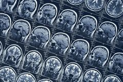 MRI脑部扫描或X-射线神经学人头头骨X线体层照相术测试 库存照片