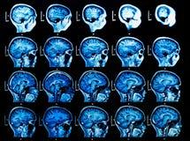 MRI脑部扫描 免版税库存图片