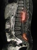 MRI腰脊柱 库存图片