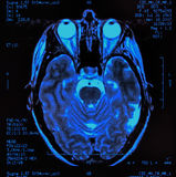 mri εγκεφάλου Στοκ Φωτογραφίες