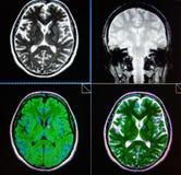 Mri χαμηλός βαθμός τραυμάτων εγκεφάλου periventricular neoplazm Στοκ Εικόνες