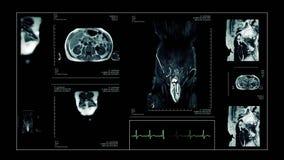 MRI живут человеческое тело развертки акции видеоматериалы