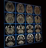mri мозга стоковое изображение rf