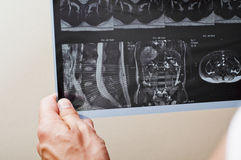 MRI. Of a patient with spinal pathology Stock Photos