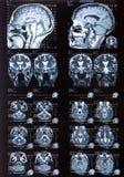 MRI Στοκ εικόνα με δικαίωμα ελεύθερης χρήσης