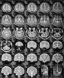 MRI Στοκ φωτογραφία με δικαίωμα ελεύθερης χρήσης