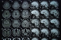 MRI. Picture of human brain Stock Images