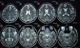 MRI. Of human head and brain Royalty Free Stock Image