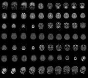 MRI royalty free stock photo