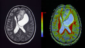 脑瘤, MRI 免版税库存图片
