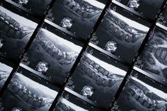 MRI Stock Image
