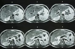 MRI of Abdomen royalty free stock image