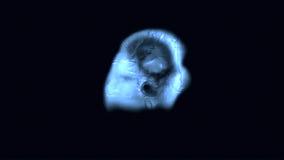 MRI-aftasten royalty-vrije illustratie