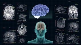MRI av den mänskliga hjärnan i de olika projektionerna