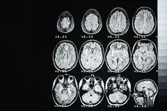 MRI av hj?rnan av en sund person p? en svart bakgrund med det gr?a panelljuset royaltyfria bilder