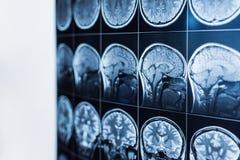 MRI av huvudet och hjärnan av en person, tomography arkivfoto