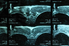 Mri of a backbone Stock Photos