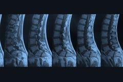 MRI-beeld Royalty-vrije Stock Fotografie