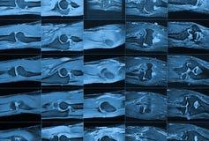 MRI-beeld Stock Afbeeldingen