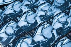 MRI-beeld van knie gezamenlijk been, schade stock foto's