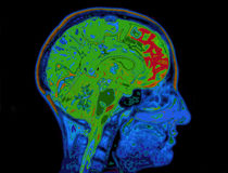 MRI-Bild des darstellenden Hauptgehirns Lizenzfreie Stockbilder