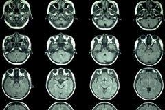MRI-bildläsning av hjärnan royaltyfri fotografi