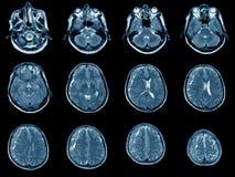 MRI-bildläsning av hjärnan Arkivfoton