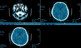 MRI-bildläsning av hjärnan, CT-bildläsning Brain Series, medicinsk bakgrund Royaltyfria Bilder