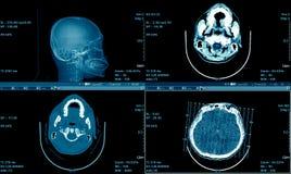 MRI-bildläsning av hjärnan, CT-bildläsning Brain Series, medicinsk bakgrund Royaltyfri Bild