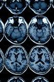 MRI-bildläsning av hjärnan för diagnos royaltyfri fotografi