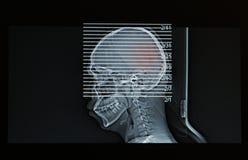MRI-bildläsning av huvudet av den head skadan för mänsklig show Royaltyfri Fotografi