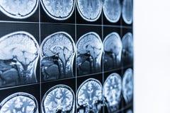 MRI-bildläsning av huvudet och hjärnan av en person i defocusen fotografering för bildbyråer