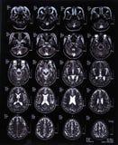 MRI-bildläsningsbild av hjärnan Arkivbild