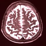 MRI of brain. Magnetic Resonance of Brain, axial MRI without contrast, color MR Royalty Free Stock Photography
