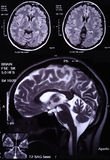 MRI of the brain Royalty Free Stock Photo