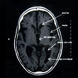 MRI of the brain. With explanations Stock Photography