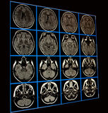 MRI of brain. Magnetic Resonance Image of Brain, axial images royalty free stock image
