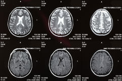 MRI of a brain royalty free stock images