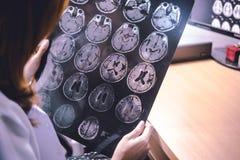 MRI brain Dementia. The MRI brain Dementia alzheimer`s disease Stock Images