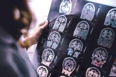 MRI brain Dementia royalty free stock photo